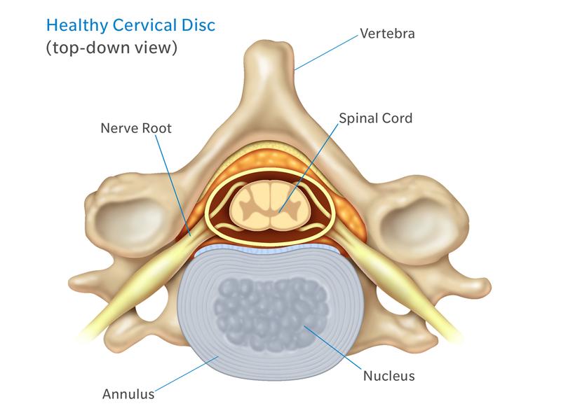 Cervical Spine Pain