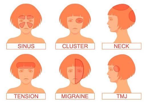 types headaches