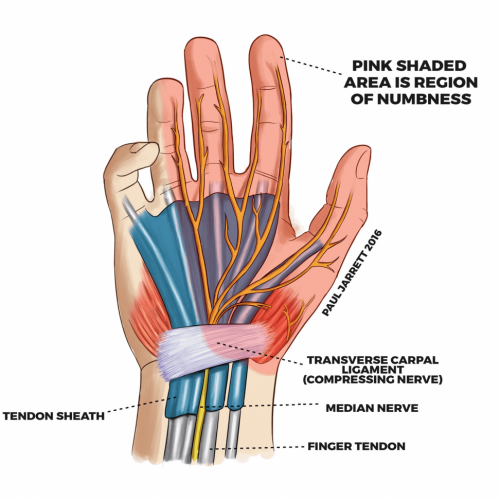 upper extremities CarpalTunnel Syndrome pain