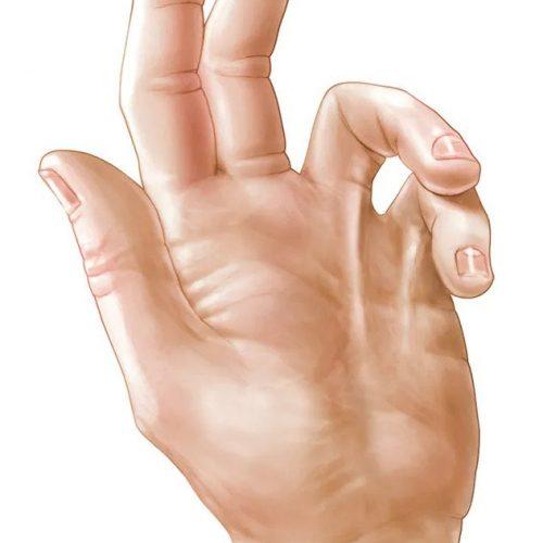 upper extremities Dupuytren'sdisease pain