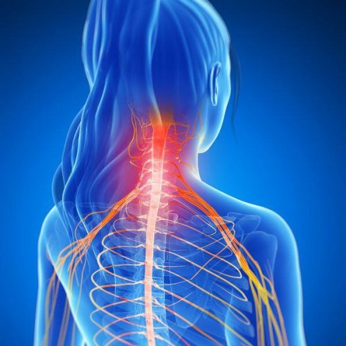 upper extremity Cervical Radiculopathy pain.