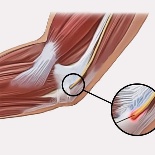 upper extremities cubital tunnel syndrome pain