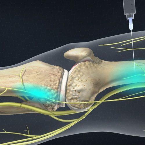 Knee Genicular nerve block