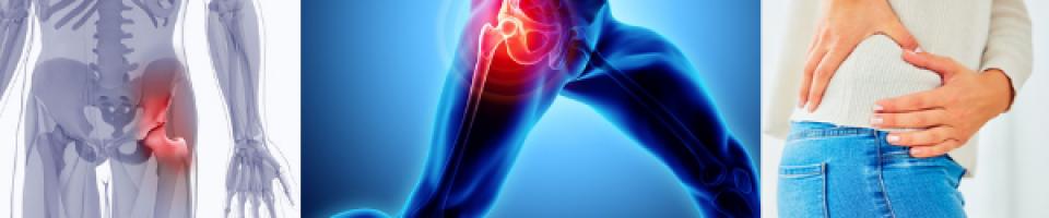 Hip Pain Causes